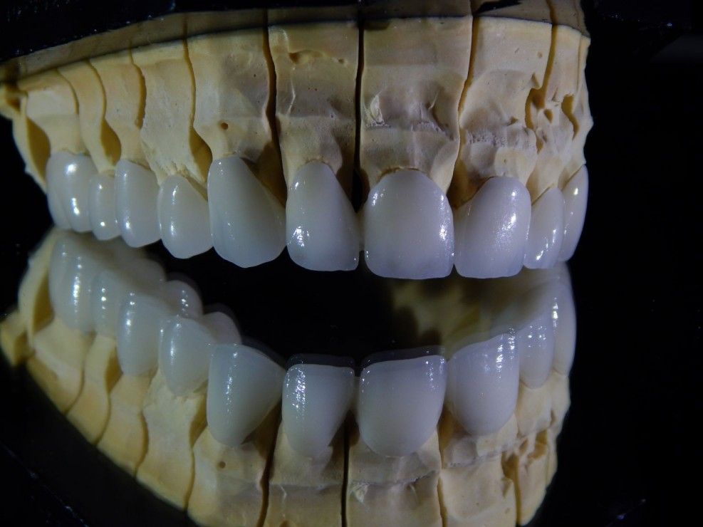 Cirkónium korona - az igazi fogpótlás